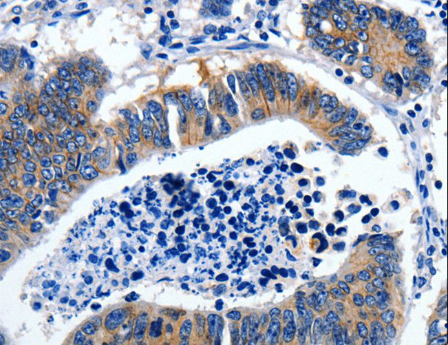 Immunohistochemistry of paraffin-embedded Human brain using GAD2 Polyclonal Antibody at dilution of 1:30.