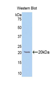 Western blot of recombinant GALC / Galactocerebrosidase.  This image was taken for the unconjugated form of this product. Other forms have not been tested.