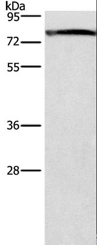 Western blot analysis of Mouse brain tissue, using GALC Polyclonal Antibody at dilution of 1:300.