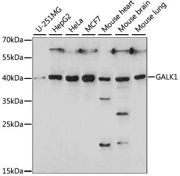 GALK1 / GK1 Antibody - Western blot analysis of extracts of various cell lines, using GALK1 antibody at 1:1000 dilution. The secondary antibody used was an HRP Goat Anti-Rabbit IgG (H+L) at 1:10000 dilution. Lysates were loaded 25ug per lane and 3% nonfat dry milk in TBST was used for blocking. An ECL Kit was used for detection and the exposure time was 60S.