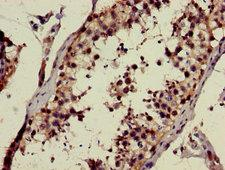 GALNAC4ST-2 / CHST9 Antibody - Immunohistochemistry image of paraffin-embedded human testis tissue at a dilution of 1:100