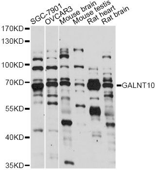 GALNT10 Antibody - Western blot analysis of extracts of various cell lines, using GALNT10 antibody at 1:1000 dilution. The secondary antibody used was an HRP Goat Anti-Rabbit IgG (H+L) at 1:10000 dilution. Lysates were loaded 25ug per lane and 3% nonfat dry milk in TBST was used for blocking. An ECL Kit was used for detection and the exposure time was 60s.