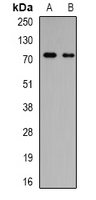 GALNT3 Antibody - Western blot analysis of GalNAc-T3 expression in MCF7 (A); SW480 (B) whole cell lysates.