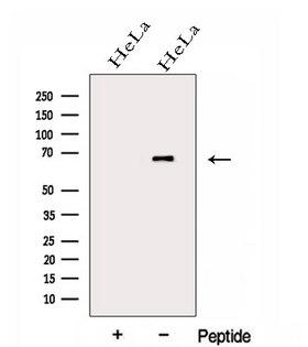 GALNT4 Antibody - Western blot analysis of extracts of HeLa cells using GALNT4 antibody. The lane on the left was treated with blocking peptide.