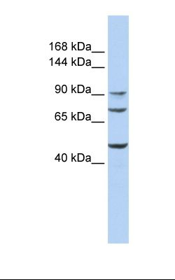 Hela cell lysate. Antibody concentration: 1.0 ug/ml. Gel concentration: 6-18%.  This image was taken for the unconjugated form of this product. Other forms have not been tested.