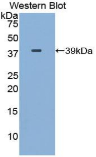 Gamma-Lipotropic Hormone Antibody - Western blot of recombinant Gamma Lipotropin.  This image was taken for the unconjugated form of this product. Other forms have not been tested.