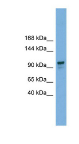 GANAB antibody LS-C117183 Western blot of 721_B cell lysate.  This image was taken for the unconjugated form of this product. Other forms have not been tested.