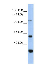 GANC antibody Western blot of HeLa lysate. This image was taken for the unconjugated form of this product. Other forms have not been tested.