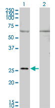 Western Blot analysis of GAP43 expression in transfected 293T cell line by GAP43 monoclonal antibody (M01), clone 3C11.Lane 1: GAP43 transfected lysate(24.8 KDa).Lane 2: Non-transfected lysate.