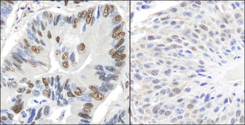 Detection of Human and Mouse GAPDH by Immunohistochemistry. Sample: FFPE section of human lung carcinoma (left) and mouse squamous cell carcinoma (right). Antibody: Affinity purified rabbit anti-GAPDH used at a dilution of 1:200 (1 Detection: DAB.