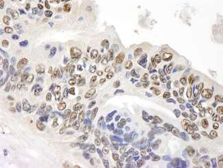 Detection of Human GAPDH by Immunohistochemistry. Sample: FFPE section of human ovarian carcinoma. Antibody: Affinity purified rabbit anti-GAPDH used at a dilution of 1:500. Detection: DAB staining using anti-Rabbit IHC antibody at a dilution of 1:100.