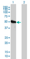 Western blot of GART expression in transfected 293T cell line by GART monoclonal antibody clone 4D6-1D5.
