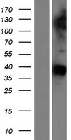 GAS1 Protein - Western validation with an anti-DDK antibody * L: Control HEK293 lysate R: Over-expression lysate