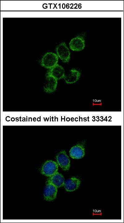 Immunofluorescence of methanol-fixed A431 using GAS2L1 antibody at 1:500 dilution.