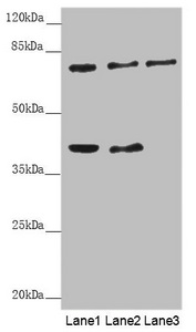 Western blot All Lanes: GAS2L1 antibody at 0.71 ug/ml Lane 1: A431 whole cell lysate Lane 2: Hela whole cell lysate Lane 3: 293T whole cell lysate Secondary Goat polyclonal to rabbit IgG at 1/10000 dilution Predicted band size: 73,37,35,49 kDa Observed band size: 73,39 kDa