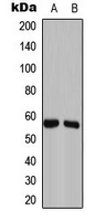 GAS8 Antibody - Western blot analysis of GAS8 expression in Caco2 (A); NIH3T3 (B) whole cell lysates.