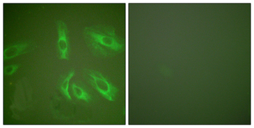 Immunofluorescence analysis of HeLa cells, using Gastrin Antibody. The picture on the right is blocked with the synthesized peptide.