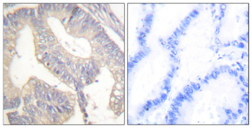 Immunohistochemistry analysis of paraffin-embedded human colon carcinoma tissue, using Gastrin Antibody. The picture on the right is blocked with the synthesized peptide.