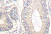 IHC of Gastrin (M90) pAb in paraffin-embedded human colon carcinoma tissue.