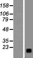 Gastrin Releasing Peptide Protein - Western validation with an anti-DDK antibody * L: Control HEK293 lysate R: Over-expression lysate
