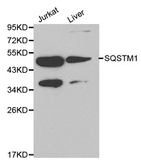 Western blot of SQSTM1 pAb in extracts from Jurkat cells and mouse liver tissue.