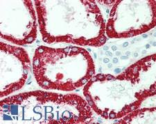 GATM / AGAT Antibody - Human Kidney: Formalin-Fixed, Paraffin-Embedded (FFPE), at a dilution of 1:50.