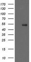 GBA3 / CBG Antibody - HEK293T cells were transfected with the pCMV6-ENTRY control (Left lane) or pCMV6-ENTRY GBA3 (Right lane) cDNA for 48 hrs and lysed. Equivalent amounts of cell lysates (5 ug per lane) were separated by SDS-PAGE and immunoblotted with anti-GBA3.