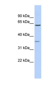 GBAS antibody Western blot of THP-1 cell lysate. This image was taken for the unconjugated form of this product. Other forms have not been tested.