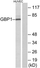 Western blot analysis of lysates from HUVEC cells, using GBP1 Antibody. The lane on the right is blocked with the synthesized peptide.