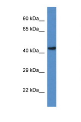GCDH antibody LS-C135134 Western blot of Rat Brain lysate. Antibody concentration 1 ug/ml.  This image was taken for the unconjugated form of this product. Other forms have not been tested.