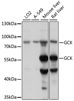 GCK / Glucokinase Antibody - Western blot analysis of extracts of various cell lines, using GCK antibody at 1:1000 dilution. The secondary antibody used was an HRP Goat Anti-Rabbit IgG (H+L) at 1:10000 dilution. Lysates were loaded 25ug per lane and 3% nonfat dry milk in TBST was used for blocking. An ECL Kit was used for detection and the exposure time was 10s.