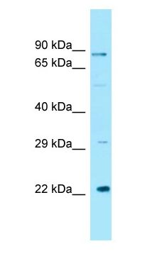 GCKR antibody Western Blot of 721_B cell lysate. GCKR is supported by BioGPS gene expression data to be expressed in 721_B.  This image was taken for the unconjugated form of this product. Other forms have not been tested.