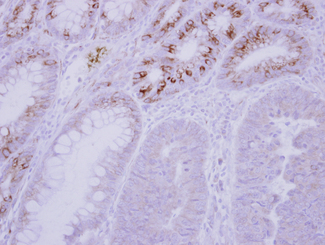 IHC of paraffin-embedded Normal Colon, using GCKR antibody at 1:500 dilution.