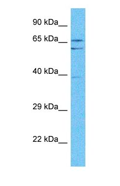 Western blot of GCKR Antibody with human Fetal Lung lysate.  This image was taken for the unconjugated form of this product. Other forms have not been tested.