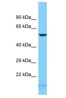 GCM2 antibody Western Blot of HeLa. Antibody dilution: 1 ug/ml.  This image was taken for the unconjugated form of this product. Other forms have not been tested.