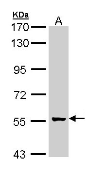 Sample (30 ug of whole cell lysate). A: A431 . 7.5% SDS PAGE. GCM2 antibody diluted at 1:1000.