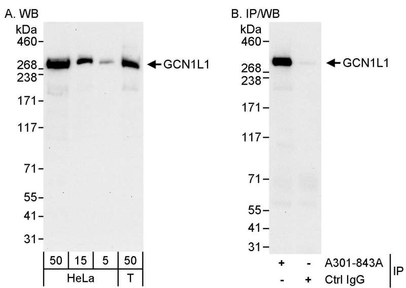 Detection of Human GCN1L1 by Western Blot and Immunoprecipitation. Samples: Whole cell lysate from HeLa (50 ug for WB; 1 mg for IP, 20% of IP loaded) and 293T (T; 50 ug) cells. Antibodies: Affinity purified rabbit anti-GCN1L1 antibody used for WB at 0.04 ug/ml (A) and 1 ug/ml (B) and used for IP at 3 ug/mg lysate. Detection: Chemiluminescence with exposure times of 30 seconds (A and B).