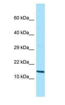 GCSH antibody Western Blot of Placenta.  This image was taken for the unconjugated form of this product. Other forms have not been tested.