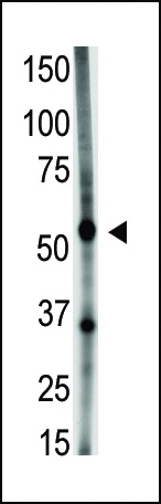 The anti-GDF5 N-term antibody is used in Western blot to detect GDF5 in A549 cell lysate.