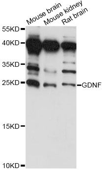 Western blot analysis of extracts of various cell lines, using GDNF antibody at 1:1000 dilution. The secondary antibody used was an HRP Goat Anti-Rabbit IgG (H+L) at 1:10000 dilution. Lysates were loaded 25ug per lane and 3% nonfat dry milk in TBST was used for blocking. An ECL Kit was used for detection and the exposure time was 60s.