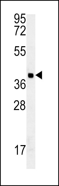 GDPD3 Antibody western blot of MDA-MB435 cell line lysates (35 ug/lane). The GDPD3 antibody detected the GDPD3 protein (arrow).