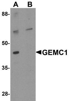 GEMC1 / GMNC Antibody - Western blot analysis of GEMC1 in mouse heart tissue lysate with GEMC1 antibody at 1 ug/ml in (A) the absence and (B) the presence of blocking peptide