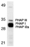 Gestrinone Antibody - Western blot analysis of PHAP in Raji cell lysate with PHAP antibody at 1µg/ml. The wide and strong band below PHAP III is a doublet composed of PHAP I (upper) and PHAP I2a (lower).