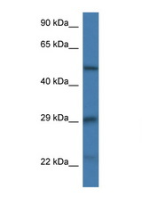 GFAP antibody LS-C135318 Western blot of Mouse Thymus lysate. Antibody concentration 1 ug/ml.  This image was taken for the unconjugated form of this product. Other forms have not been tested.