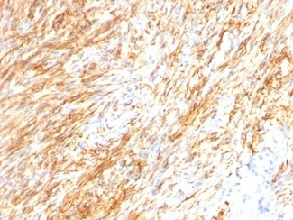 Formalin-fixed, paraffin-embedded human Schwannoma stained with GFAP antibody (GA-5 + ASTRO/789).  This image was taken for the unmodified form of this product. Other forms have not been tested.