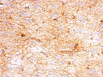 Formalin-fixed, paraffin-embedded human cerebellum stained with GFAP antibody (SPM507).  This image was taken for the unmodified form of this product. Other forms have not been tested.