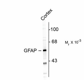 Western Blot of GFAP antibody. Western blot of rat cortex lysate showing specific immunolabeling of ~50k GFAP protein