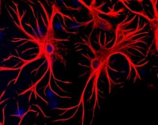Immunofluorescent staining using GFAP antibody. Mixed cultures of neurons and glia stained with chicken anti-GFAP (red), and DNA (blue)