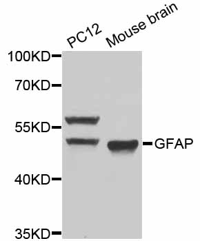 Western blot analysis of extracts of various cell lines, using GFAP antibody at 1:1000 dilution. The secondary antibody used was an HRP Goat Anti-Rabbit IgG (H+L) at 1:10000 dilution. Lysates were loaded 25ug per lane and 3% nonfat dry milk in TBST was used for blocking. An ECL Kit was used for detection and the exposure time was 90s.