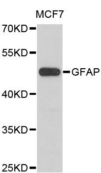 Western blot analysis of extracts of MCF7 cells.